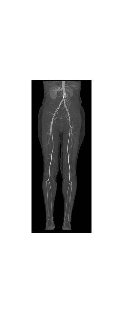 Artery Disease Ct Vascular Giphy Peripheral Arterial
