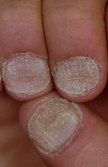 nail deformities  dystrophies dermatologic disorders