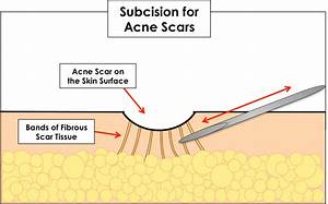 Best Acne Scars Treatment In Charlotte Nc