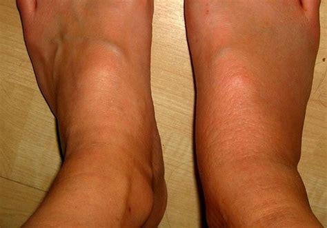 Symptoms Of Blood Clot In Leg defenderautoinfo
