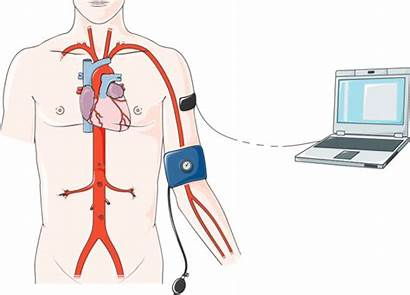 Clipart Cardiac Catheterization Transparent Blood Pressure Clip