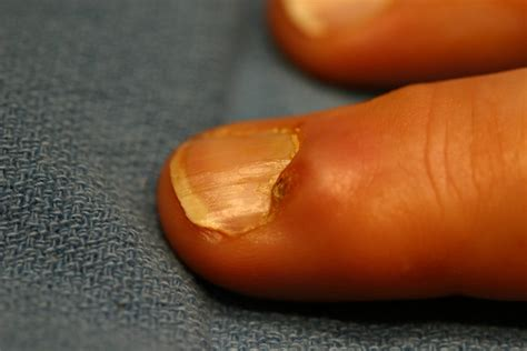 picture suggestion for sore finger near nail