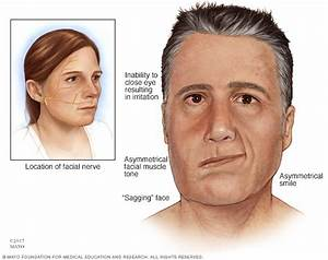 Bell U0026 39 S Palsy Disease Reference Guide