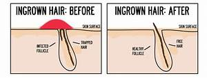 How To Avoid Ingrown Hairs With Waxing Or Tweezing Waxing