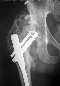 Heterotopic Ossification - Pathology