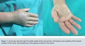 Hand Hematoma After Cardiac Catheterization Via Distal