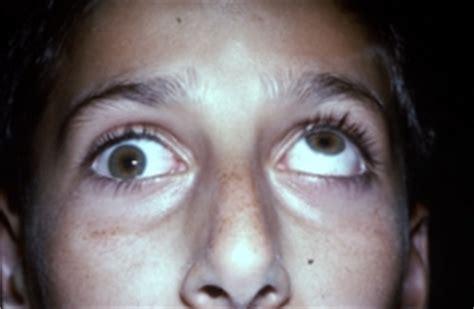 fractured orbital floor with ocular entrapment orbital and periorbital