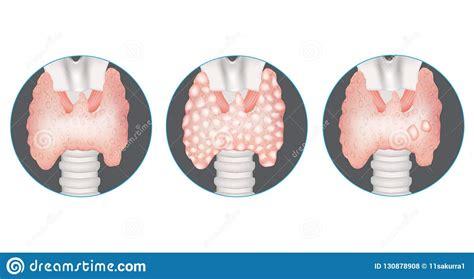 Thyroid Gland Vector Illustration