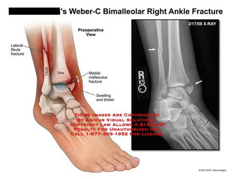 Amicus Illustration Of Amicus,injury,ankle,fracture,weber