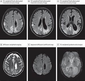 Mitochondrial Encephalomyopathy With Lactic Acidosis And