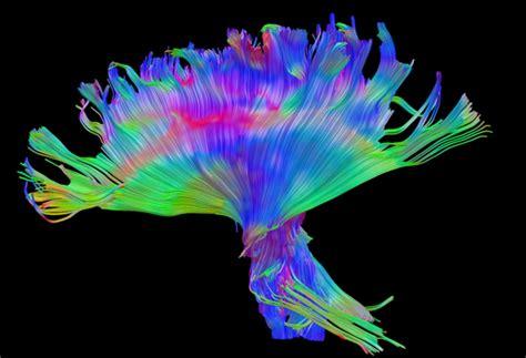 brain injury  high def  fiber tracking futurity