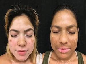 treatment   breakthrough  vitiligo skin