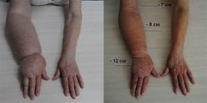 Лечение после удаления папилломы молочной железы