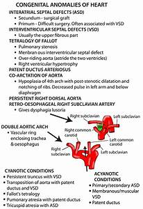Congenital Anomalies On Meducation