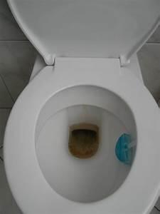 Hartnäckige Verschmutzung Toilette : nettigkeiten ~ Frokenaadalensverden.com Haus und Dekorationen