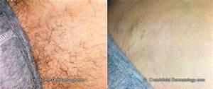 Permanent Laser Hair Removal Eagan MN Crutchfield Derm