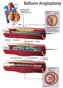 Coronary Angioplasty: Treatment for Heart Disease  Heart Diseases Angioplasty