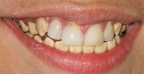 discolored broken  teeth  child