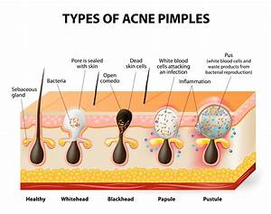 Why You Shouldn U0026 39 T Pop Pimples  U2014 And 9 Other Things To Know About Acne