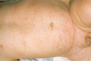 Roseola Stomach Boy Pictures