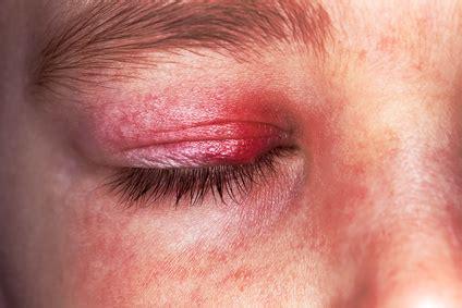 orbitaphlegmone ursachen beschwerden therapie