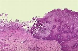 Microbiology Tutorial  Ulcer CMV esophagitis