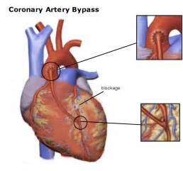 Heart bypass surgery. Causes, symptoms, treatment Heart bypass surgery Heart Bypass Surgery