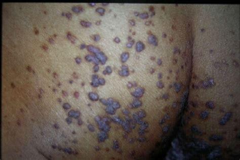Dermatology Studyblue