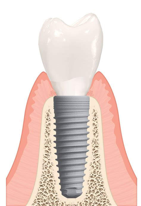 Dental Implants  Western Pennsylvania Oral And. Mobile Internet Marketing Churn Analysis Wiki. United Auto Credit Corp Berlin Germany Hotels. Certified Steel Treating Exterior Chair Lifts. Cheap Tv And Internet Service. Legionnaire Disease Symptoms. Granite Hills High School Color Laser Labels. Small Payday Loans For Bad Credit. Best Free Online Meeting Software