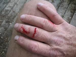 Pike attacks angler! - Angler's Mail