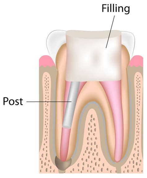Pain After Root Canal Treatment Filling | Health Products ...