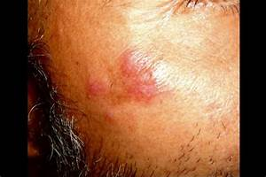 Derm Dx  A Rash On The Cheek And Forehead
