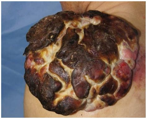 keratin positive cutaneous squamous cell carcinoma