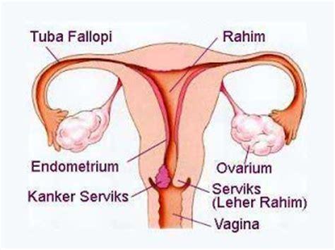 Fungsi Rahim Wanita Really Cause Cancer Uterus Polyp Healthy Life Mind