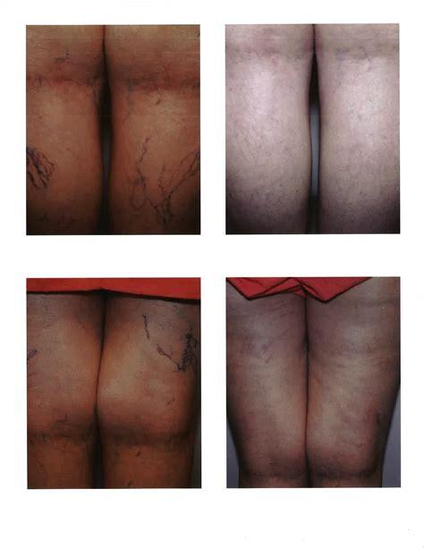 Ovarian Cysts Acne Treatment