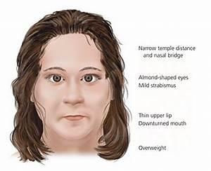 Prader Willi Syndrome - Pictures, Symptoms, Life ...