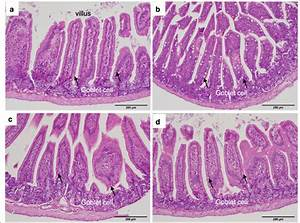 Histopathology Of The Small Intestine  H U0026e