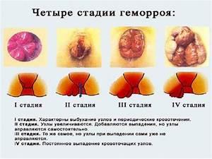 Веносмин от геморроя