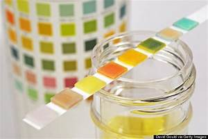 Interpreting Urinalysis For Potential Infection In The