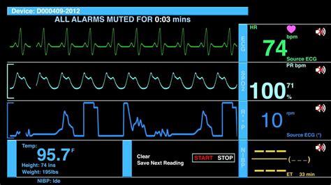 Ecg Ekg Heart Rate Monitor Screen With Audio. Stock