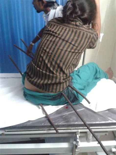girl  survives  impaled   metal rods