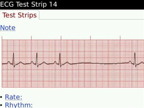 ecg notes  helpful cardiology medical app   blackberry