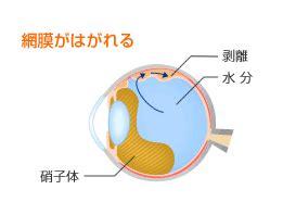 網膜 剥離 原因