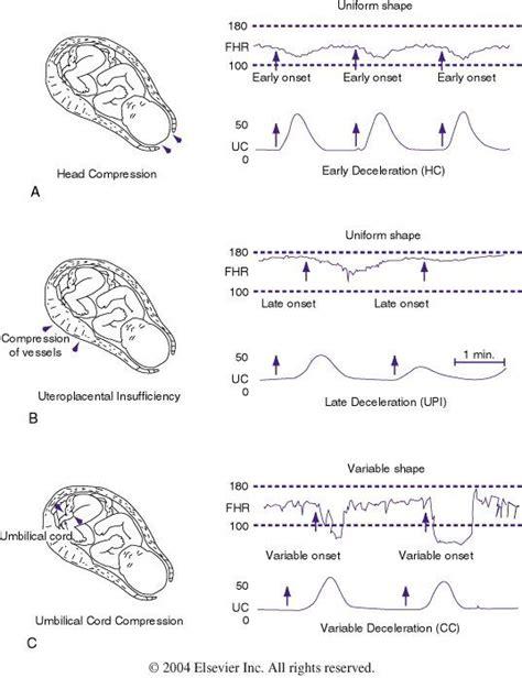 figure 85 4 patterns of periodic fetal rate fhr deceleration school ob