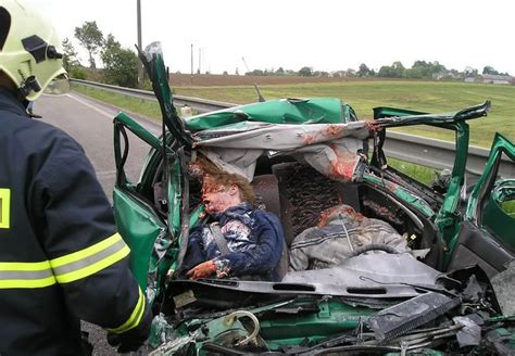 Nasty Effects Of Road Accidents (caution Very Graphic And