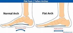 Flat Feet Or Pes Planus Or Fallen Arches