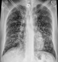 for the love of med school: Imaging Interstitial Lung Disease Interstitial lung disease