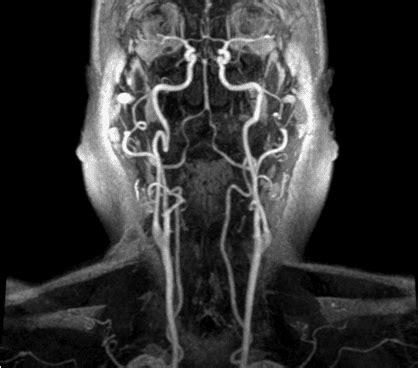 ecocolordoppler vasi epiaortici rm vasi epiaortici con mdc medicentergroup