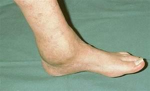 Артроз левого голеностопного сустава 1 степени лечение