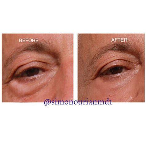 cosmetic surgery bags  eyes treatment sema data  op